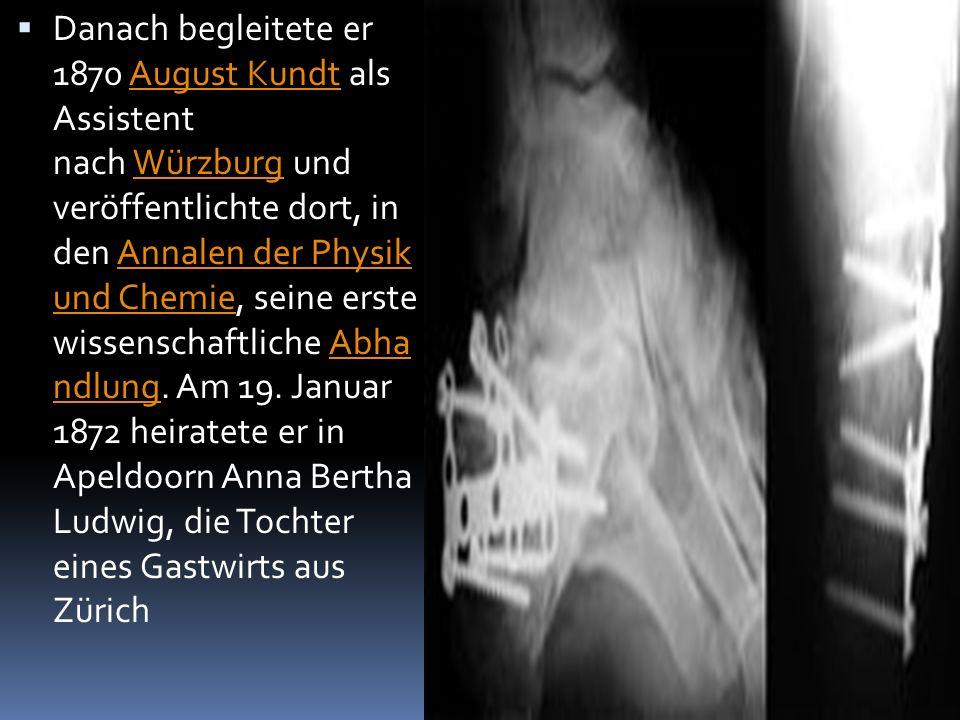  Röntgenaufnah me: Albert von Koellikers Hand, aufgenommen von Conrad Röntgen am 23.