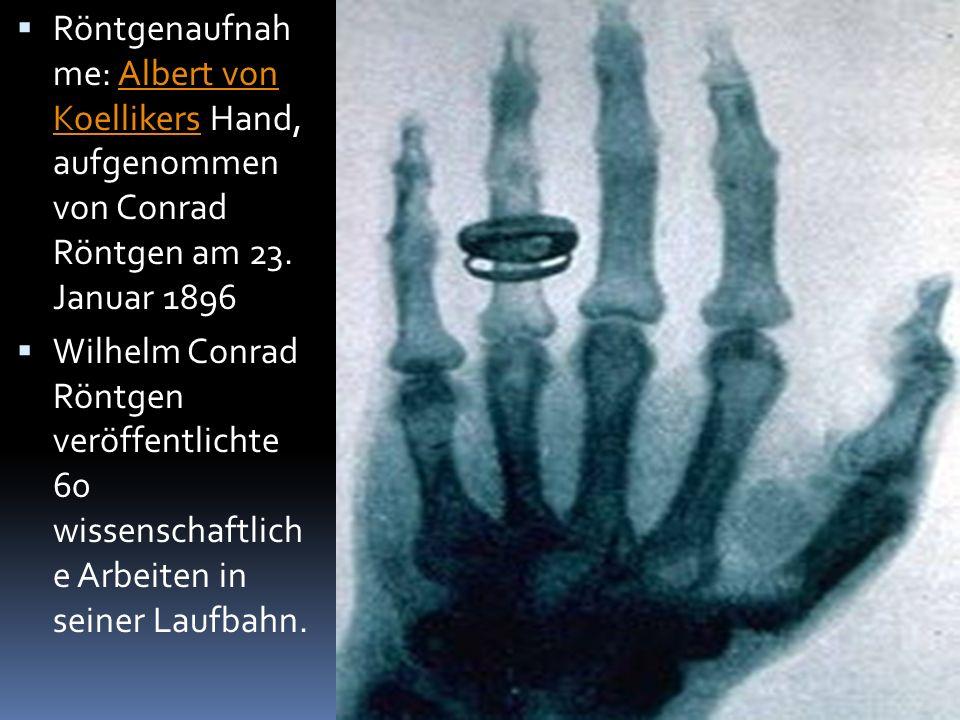  Röntgenaufnah me: Albert von Koellikers Hand, aufgenommen von Conrad Röntgen am 23. Januar 1896Albert von Koellikers  Wilhelm Conrad Röntgen veröff