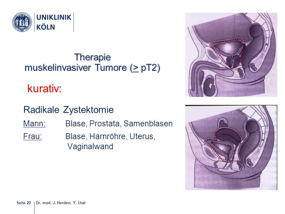 Dr. med. J. Herden; Y. UralSeite 20 Radikale Zystektomie Mann: Blase, Prostata, Samenblasen Frau:Blase, Harnröhre, Uterus, Vaginalwand kurativ: 20-40