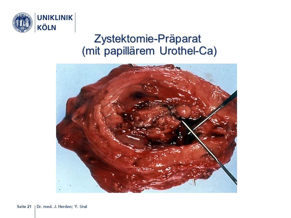 Dr. med. J. Herden; Y. UralSeite 21 21-40 Zystektomie-Präparat (mit papillärem Urothel-Ca) (mit papillärem Urothel-Ca)