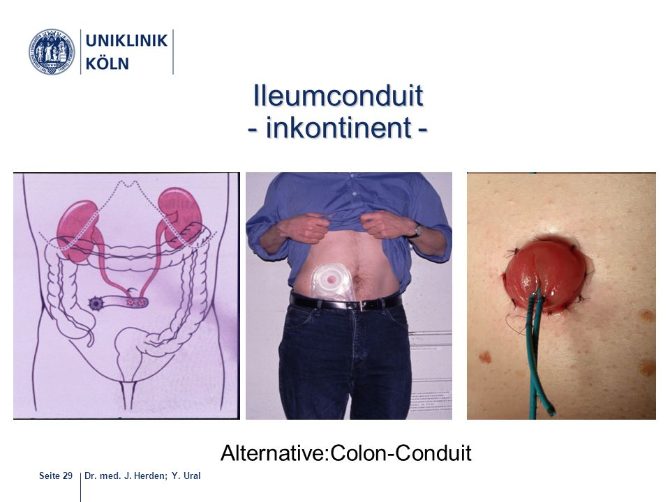 Dr. med. J. Herden; Y. UralSeite 29 Häufigste Form der definitiven Harnableitung 28-40 Ileumconduit - inkontinent - Alternative:Colon-Conduit