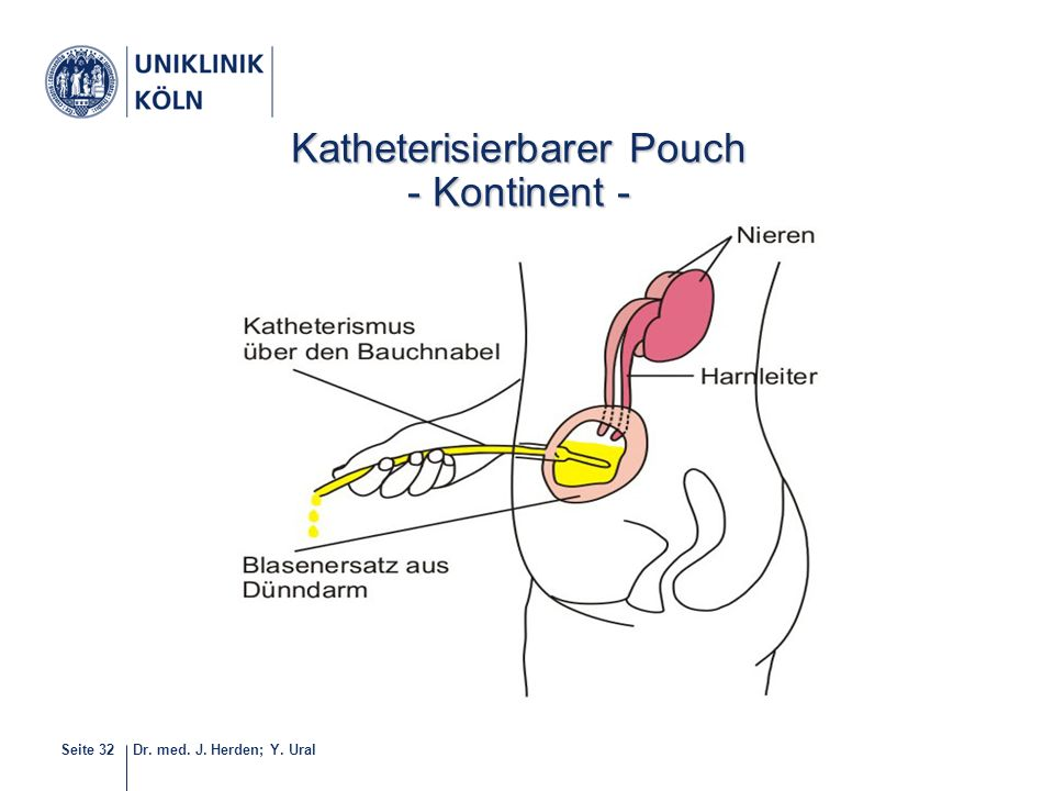 Dr. med. J. Herden; Y. UralSeite 32 34-40 Katheterisierbarer Pouch - Kontinent -