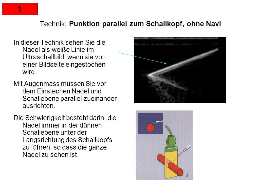 1 Technik: Punktion parallel zum Schallkopf, ohne Navi In dieser Technik sehen Sie die Nadel als weiße Linie im Ultraschallbild, wenn sie von einer Bildseite eingestochen wird.