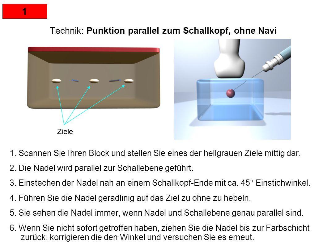 1 Technik: Punktion parallel zum Schallkopf, ohne Navi HINWEISE: Wenn die Nadel aus dem Ultraschallbild verschwindet, den Schallkopf langsam parallel nach links oder rechts verschieben oder leicht rotierend bewegen, bis die Nadel wieder ganz dargestellt wird.