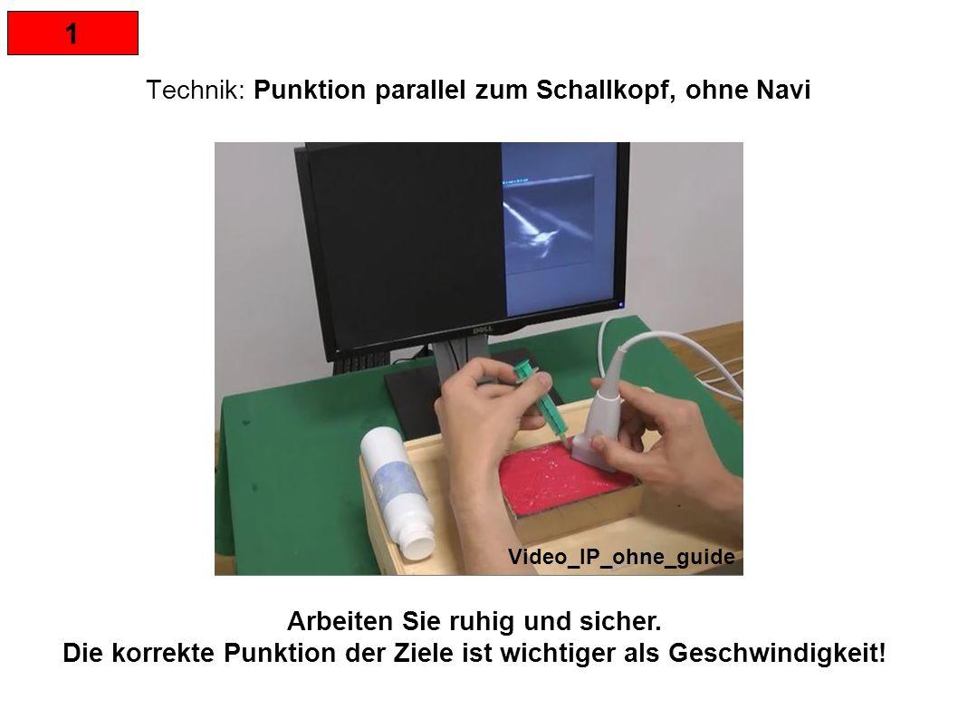 1 Technik: Punktion parallel zum Schallkopf, ohne Navi Arbeiten Sie ruhig und sicher. Die korrekte Punktion der Ziele ist wichtiger als Geschwindigkei