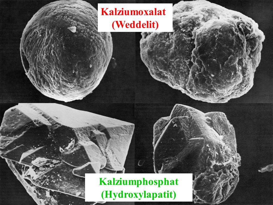 Radiologisches Institut / Gyn. Radiologie Kalziumphosphat (Hydroxylapatit) Kalziumoxalat (Weddelit)