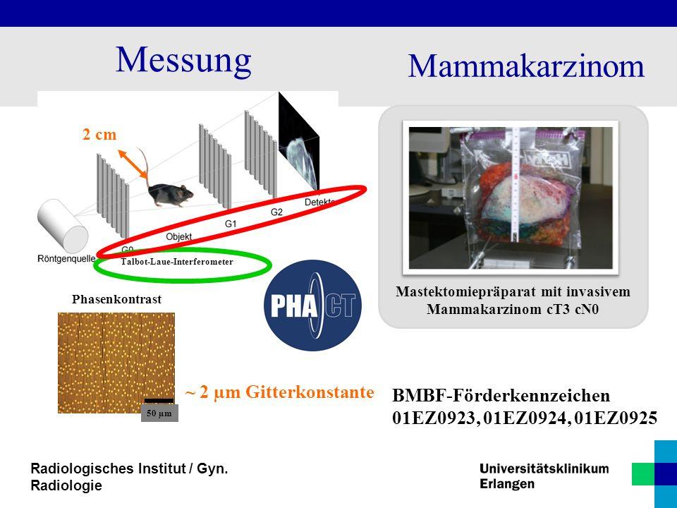 Radiologisches Institut / Gyn. Radiologie Messung Phasenkontrast Mastektomiepräparat mit invasivem Mammakarzinom cT3 cN0 Mammakarzinom Talbot-Laue-Int