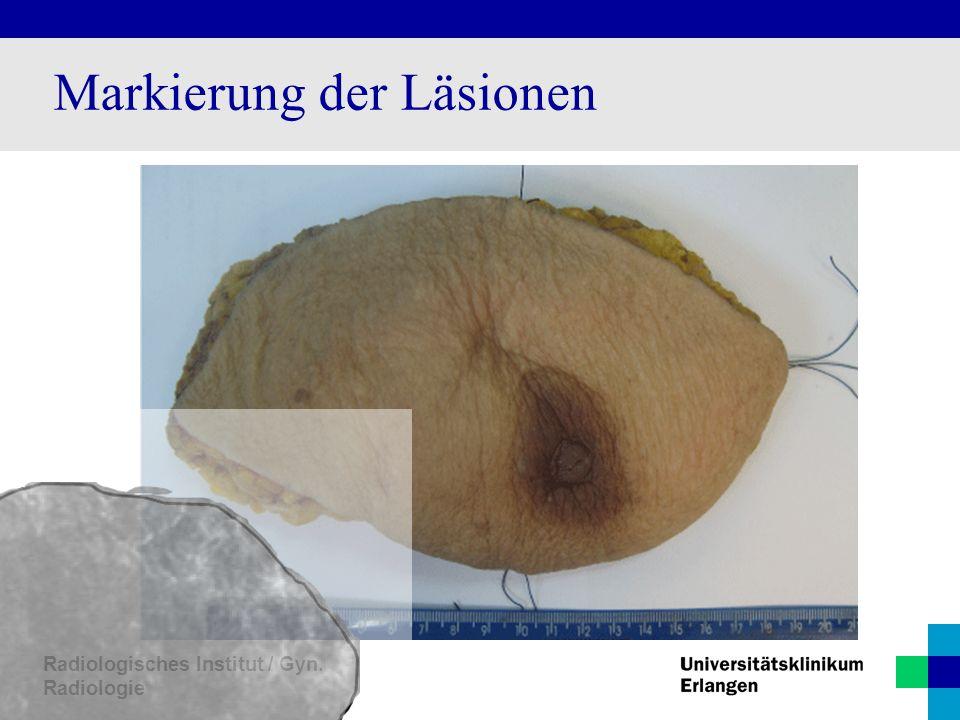 Radiologisches Institut / Gyn. Radiologie Markierung der Läsionen