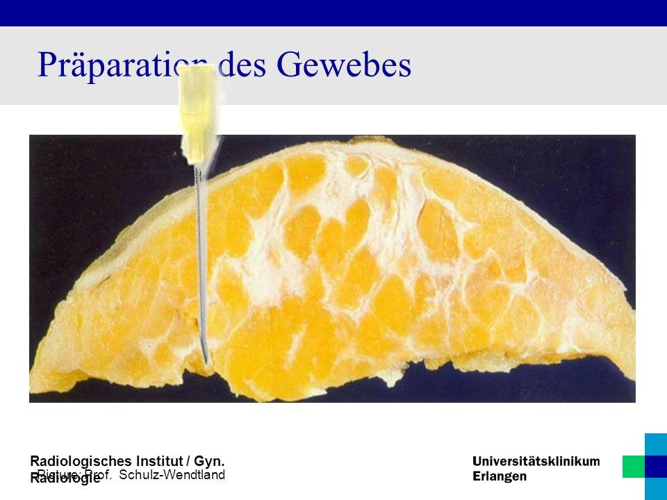 Radiologisches Institut / Gyn. Radiologie Präparation des Gewebes Picture: Prof. Schulz-Wendtland