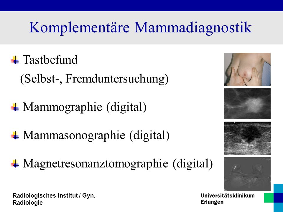 Radiologisches Institut / Gyn. Radiologie Komplementäre Mammadiagnostik Tastbefund (Selbst-, Fremduntersuchung) Mammographie (digital) Mammasonographi