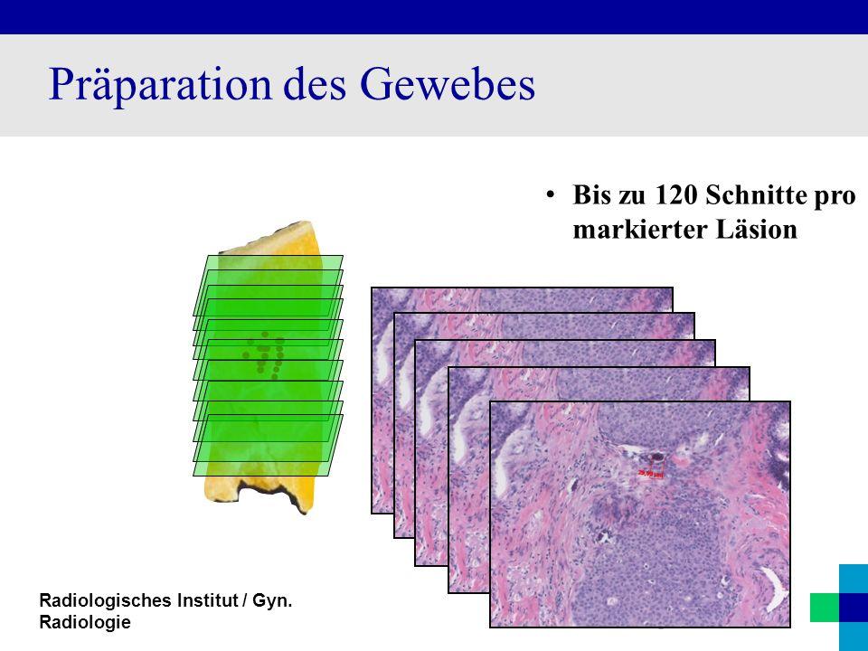 Radiologisches Institut / Gyn. Radiologie Präparation des Gewebes Bis zu 120 Schnitte pro markierter Läsion