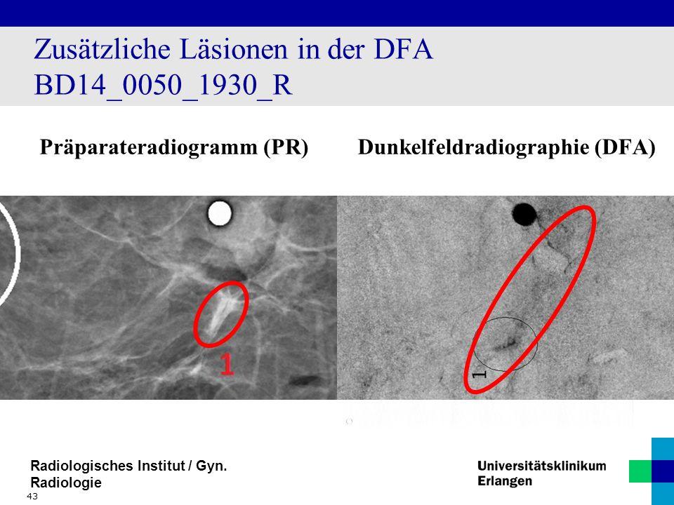 Radiologisches Institut / Gyn. Radiologie Zusätzliche Läsionen in der DFA BD14_0050_1930_R Präparateradiogramm (PR)Dunkelfeldradiographie (DFA) 43