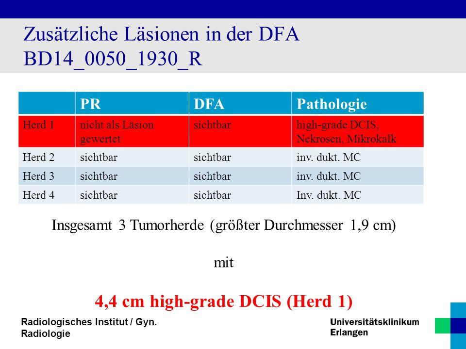 Radiologisches Institut / Gyn. Radiologie Zusätzliche Läsionen in der DFA BD14_0050_1930_R PRDFAPathologie Herd 1nicht als Läsion gewertet sichtbarhig