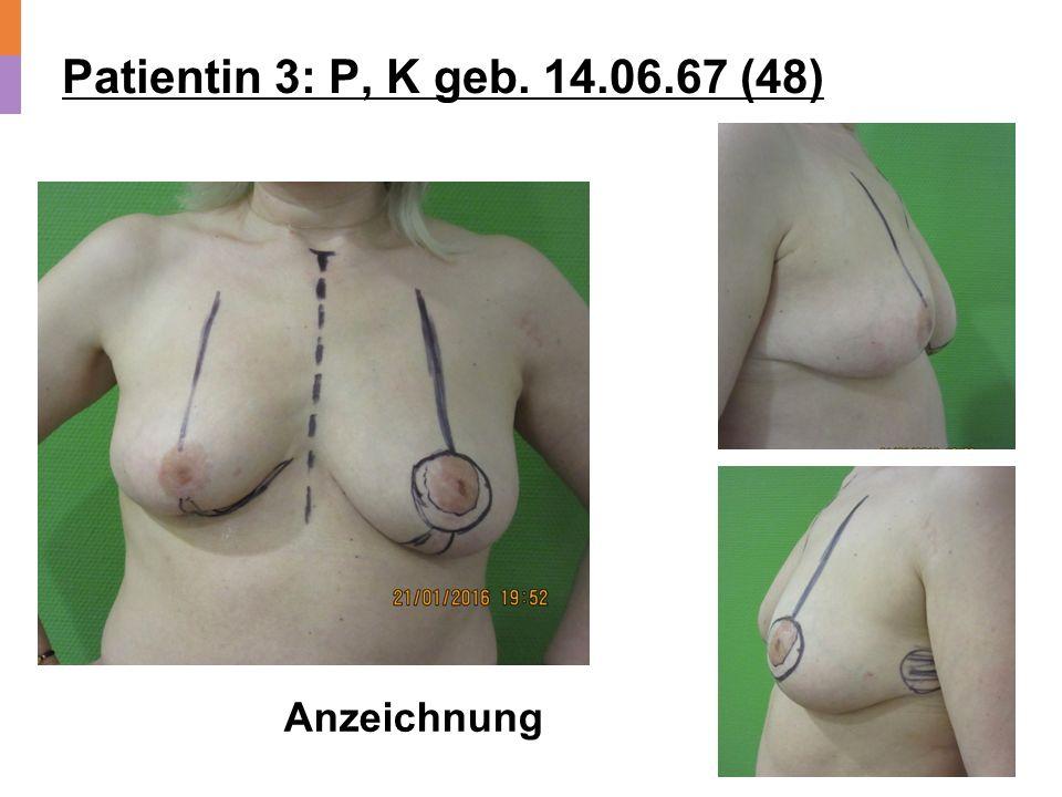 Patientin 3: P, K geb. 14.06.67 (48) Anzeichnung