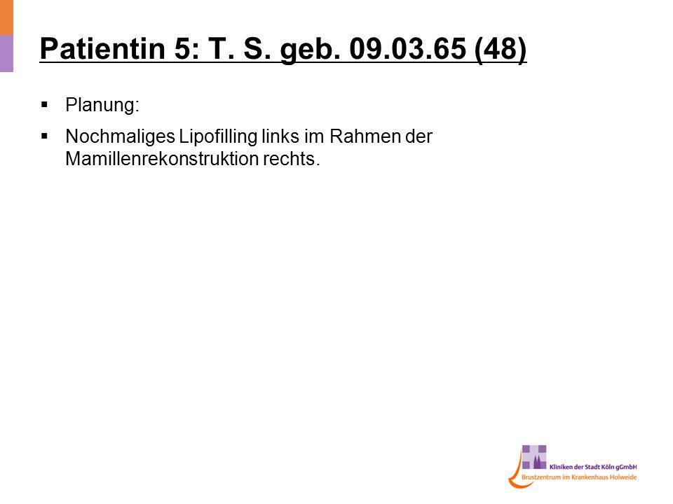 Patientin 5: T. S. geb. 09.03.65 (48)  Planung:  Nochmaliges Lipofilling links im Rahmen der Mamillenrekonstruktion rechts.