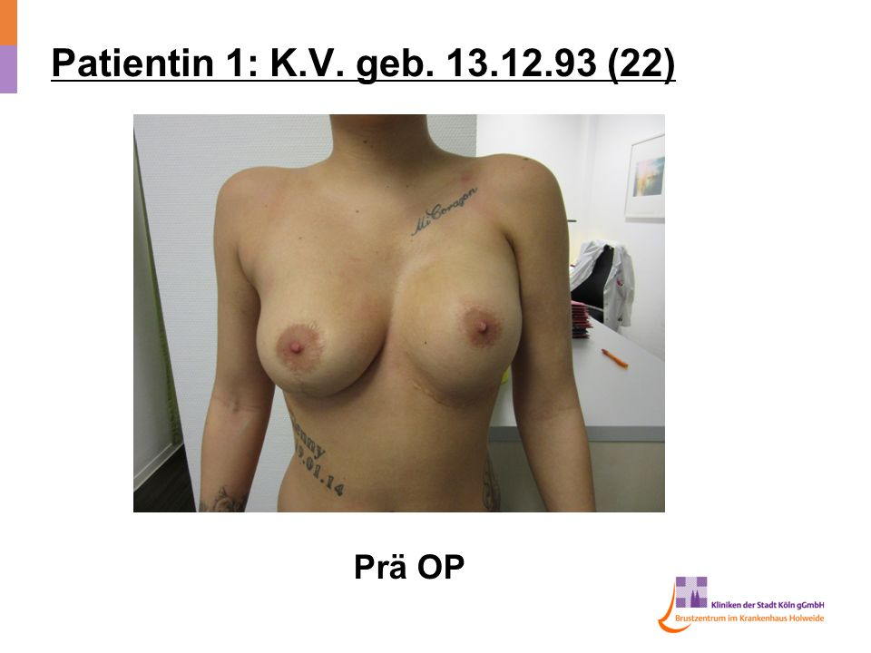 Patientin 1: K.V. geb. 13.12.93 (22) Prä OP