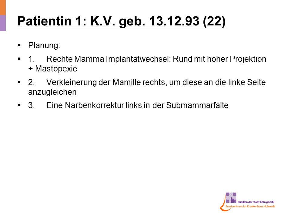 Patientin 1: K.V. geb. 13.12.93 (22)  Planung:  1.Rechte Mamma Implantatwechsel: Rund mit hoher Projektion + Mastopexie  2.Verkleinerung der Mamill