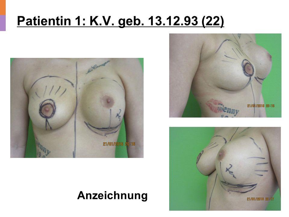 Patientin 1: K.V. geb. 13.12.93 (22) Post OP