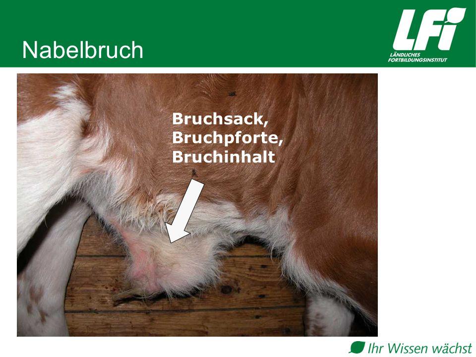 Bruchsack, Bruchpforte, Bruchinhalt Nabelbruch