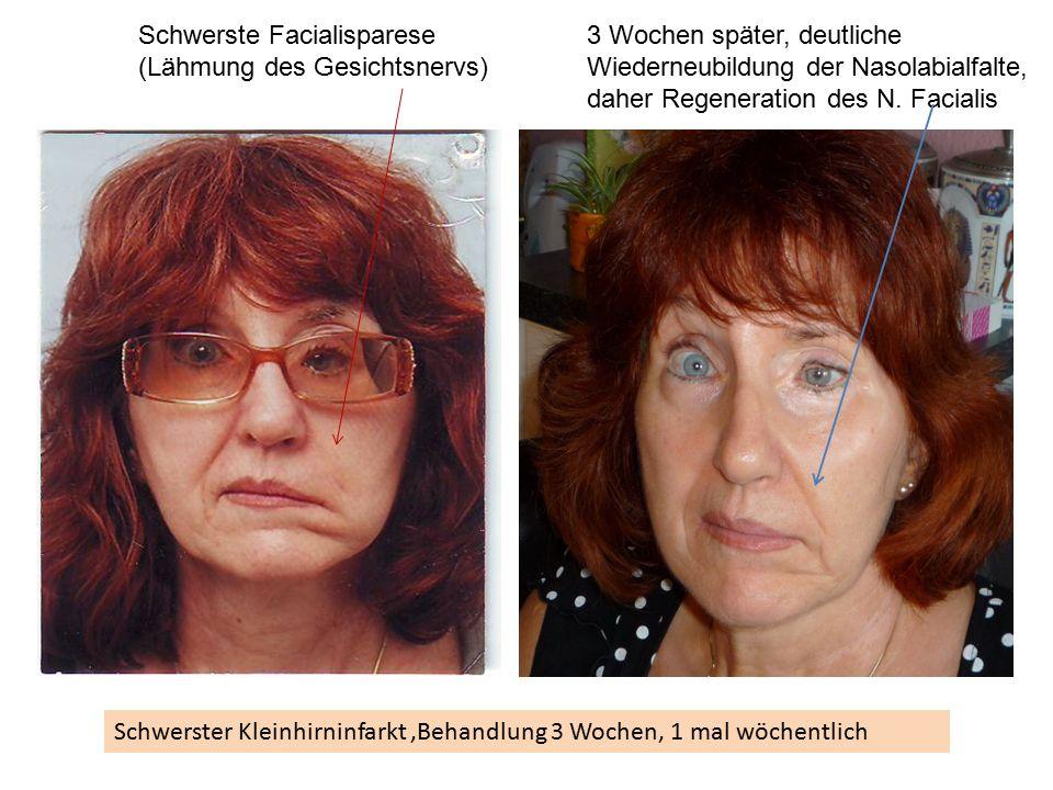 Schwerster Kleinhirninfarkt,Behandlung 3 Wochen, 1 mal wöchentlich Schwerste Facialisparese (Lähmung des Gesichtsnervs) 3 Wochen später, deutliche Wiederneubildung der Nasolabialfalte, daher Regeneration des N.