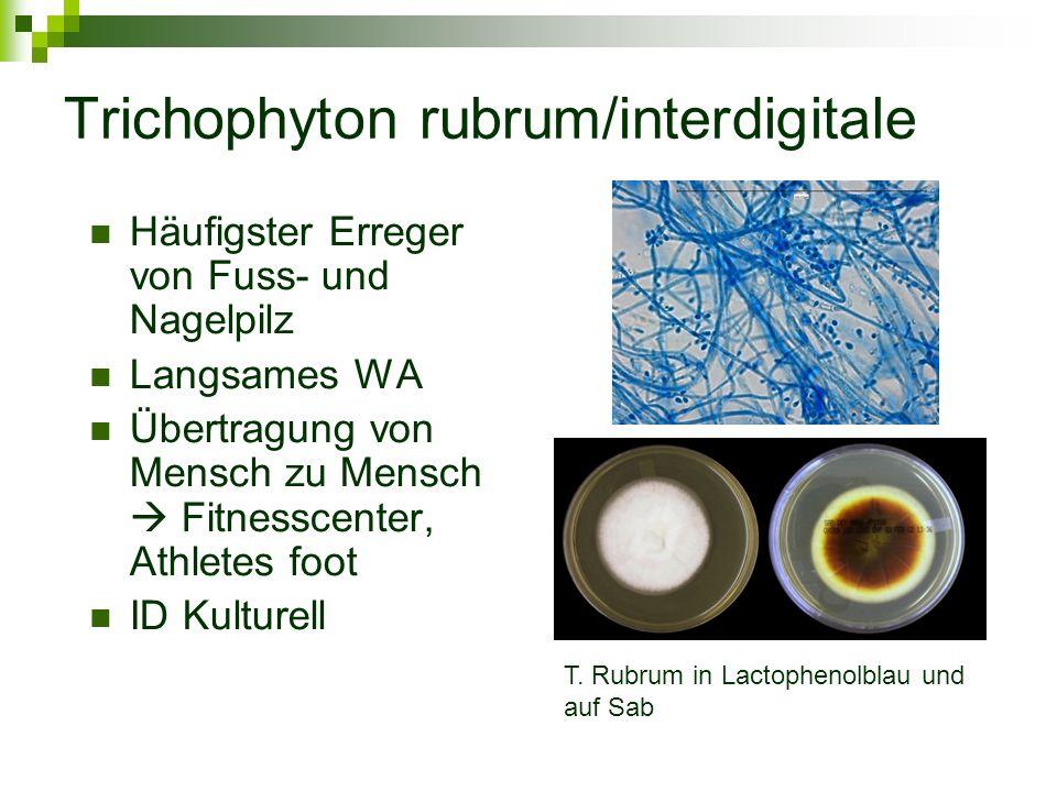 Trichophyton rubrum/interdigitale Häufigster Erreger von Fuss- und Nagelpilz Langsames WA Übertragung von Mensch zu Mensch  Fitnesscenter, Athletes f