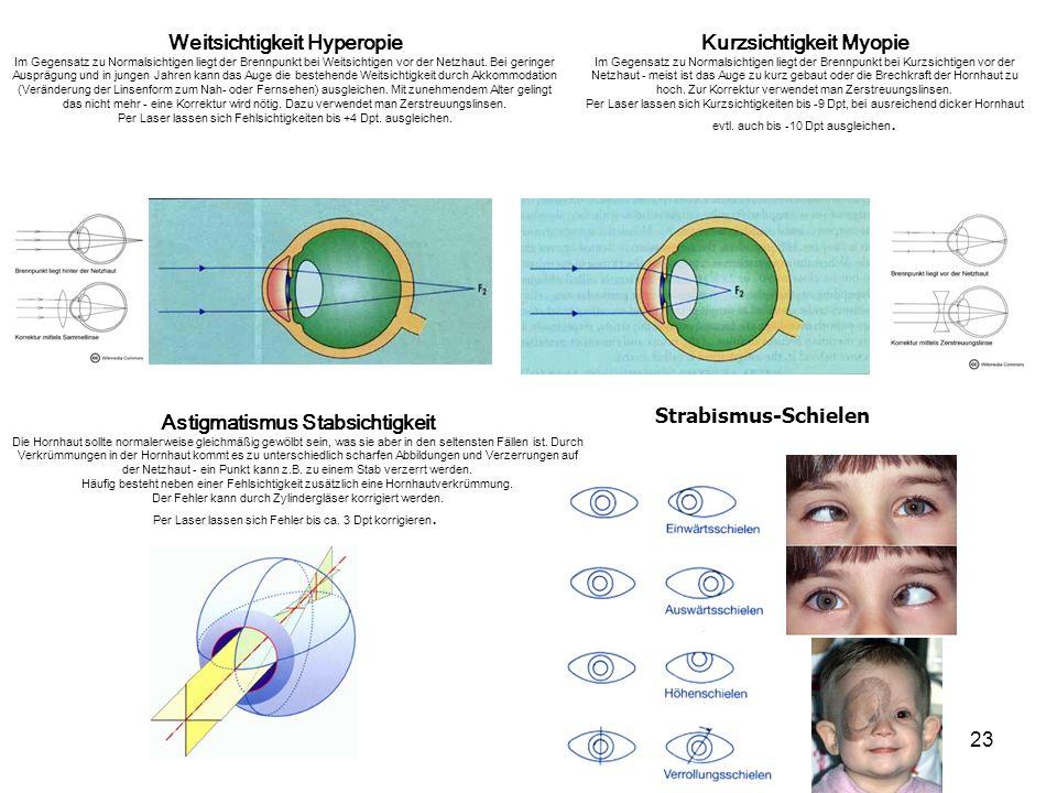 23 Strabismus-Schielen Kurzsichtigkeit Myopie Im Gegensatz zu Normalsichtigen liegt der Brennpunkt bei Kurzsichtigen vor der Netzhaut - meist ist das