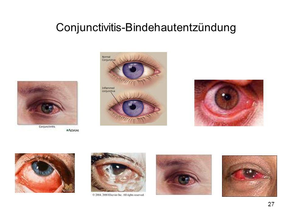 27 Conjunctivitis-Bindehautentzündung