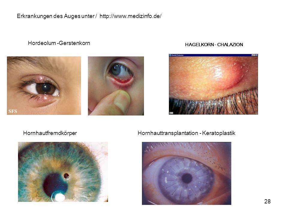 28 Hordeolum -Gerstenkorn HAGELKORN - CHALAZION HornhautfremdkörperHornhauttransplantation - Keratoplastik http://www.medizinfo.de/Erkrankungen des Au