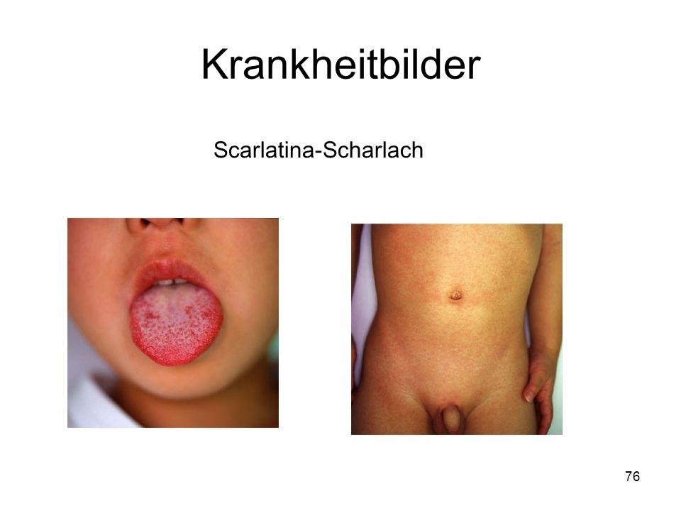 76 Scarlatina-Scharlach Krankheitbilder