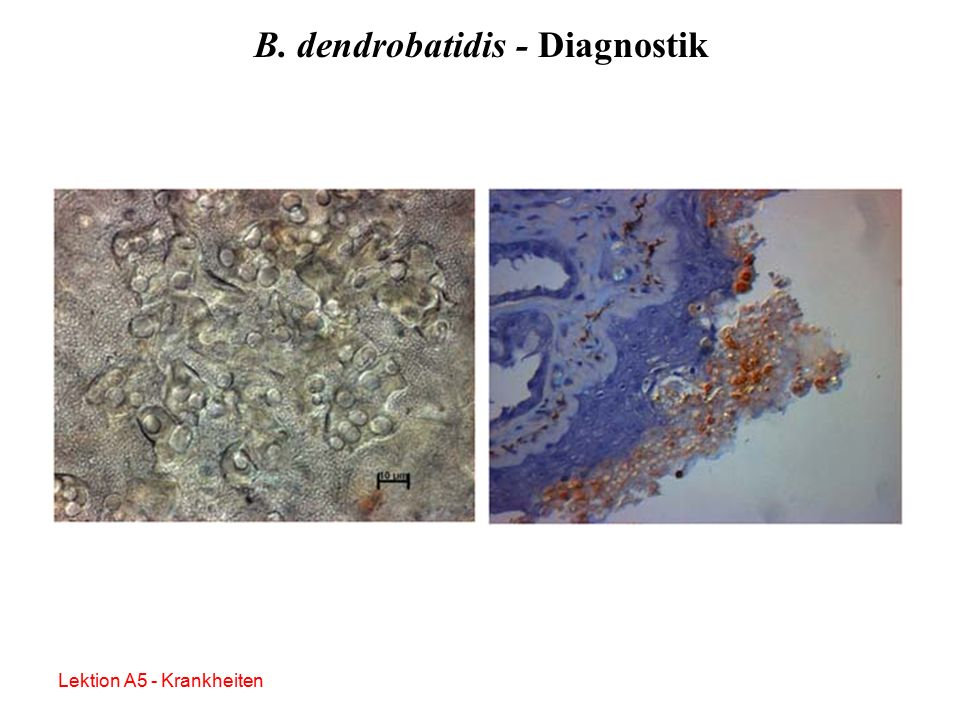 B. dendrobatidis - Diagnostik Nativ, mikroskopisch (unsicher, nur bei massivem Befall!) Histologisch Immunhistochemisch PCR Lektion A5 - Krankheiten