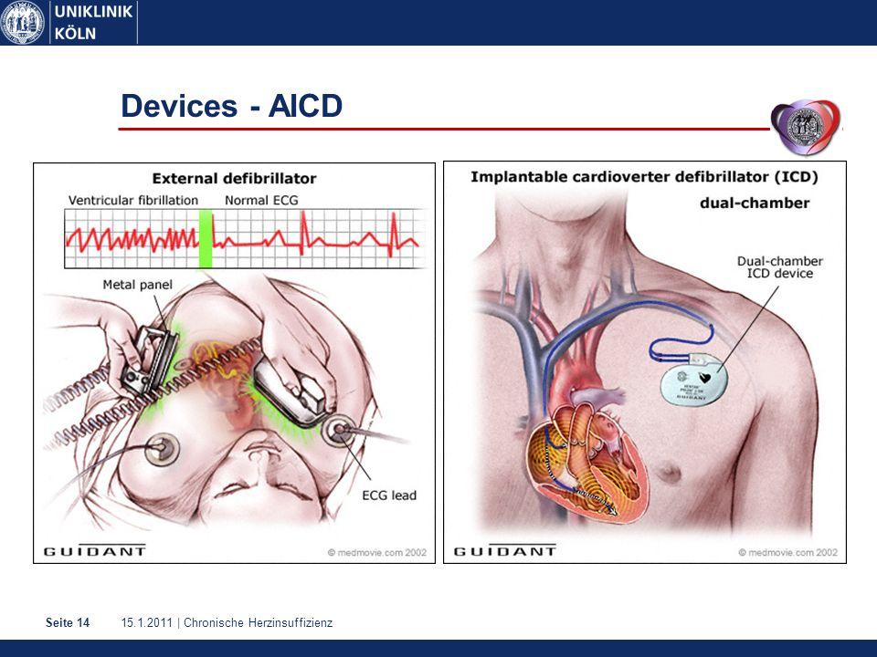 15.1.2011 | Chronische HerzinsuffizienzSeite 14 Devices - AICD