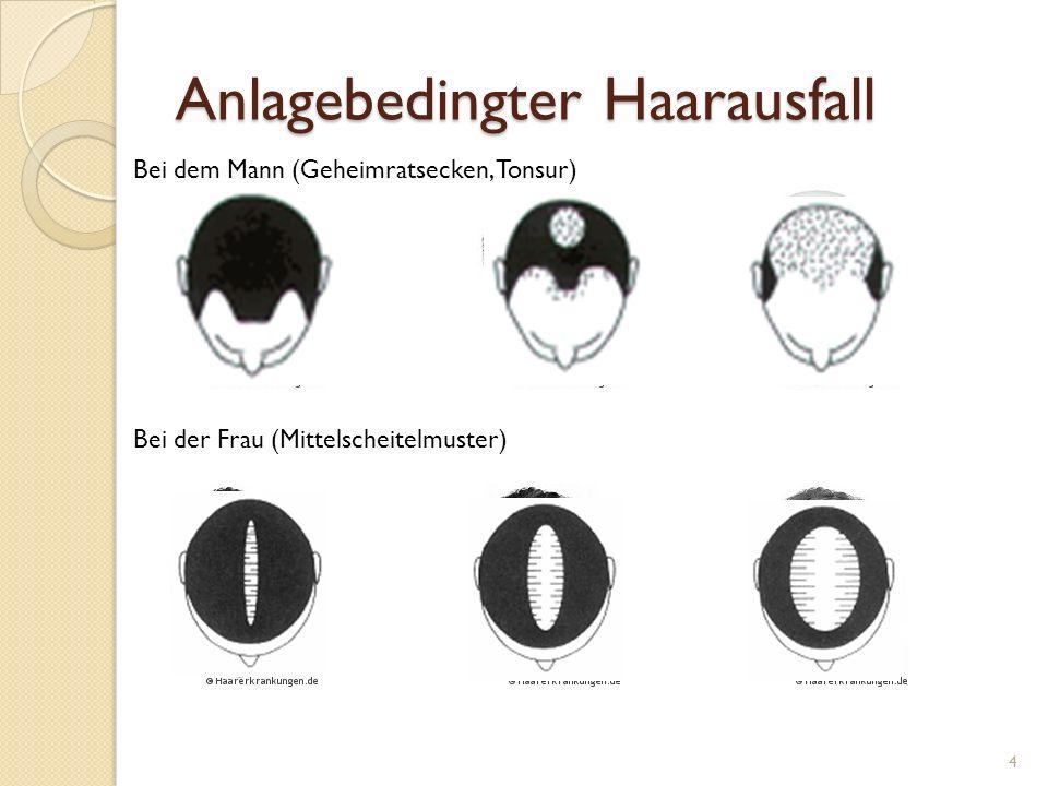 Anlagebedingter Haarausfall 4 Bei dem Mann (Geheimratsecken, Tonsur) Bei der Frau (Mittelscheitelmuster)