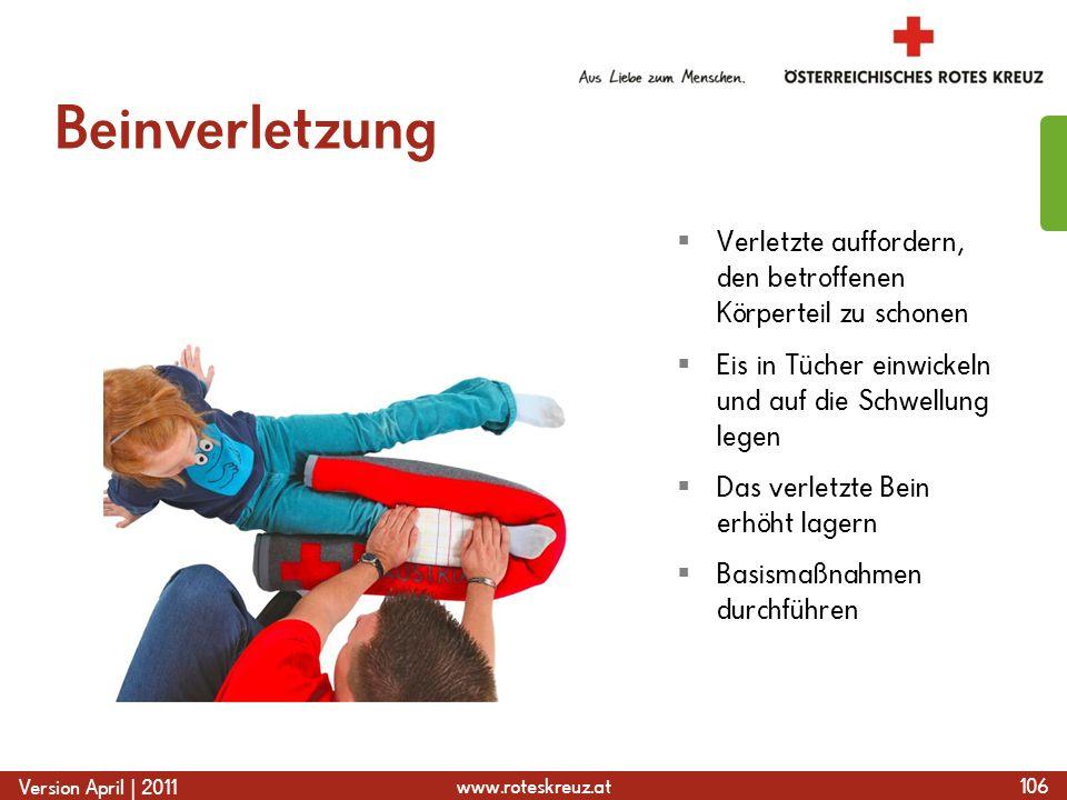 www.roteskreuz.at Version April | 2011 Beinverletzung 106  Verletzte auffordern, den betroffenen Körperteil zu schonen  Eis in Tücher einwickeln und auf die Schwellung legen  Das verletzte Bein erhöht lagern  Basismaßnahmen durchführen
