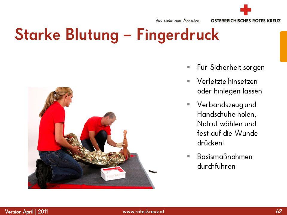 www.roteskreuz.at Version April | 2011 Starke Blutung – Fingerdruck 62  Für Sicherheit sorgen  Verletzte hinsetzen oder hinlegen lassen  Verbandszeug und Handschuhe holen, Notruf wählen und fest auf die Wunde drücken.