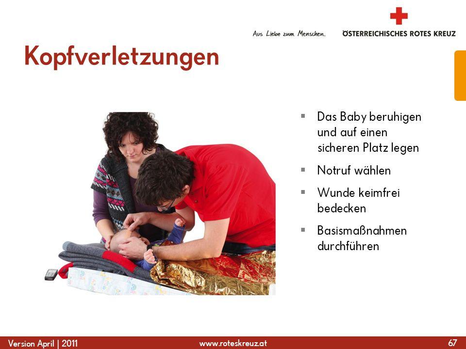 www.roteskreuz.at Version April | 2011 Kopfverletzungen  Das Baby beruhigen und auf einen sicheren Platz legen  Notruf wählen  Wunde keimfrei bedecken  Basismaßnahmen durchführen 67