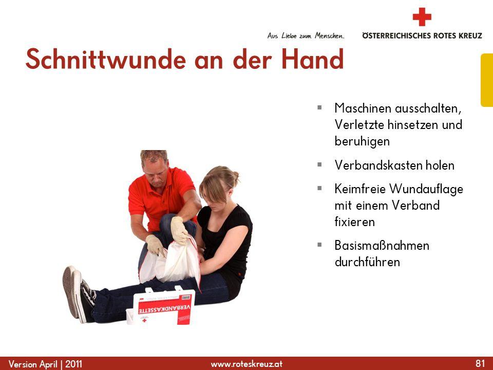 www.roteskreuz.at Version April | 2011 Schnittwunde an der Hand 81  Maschinen ausschalten, Verletzte hinsetzen und beruhigen  Verbandskasten holen 
