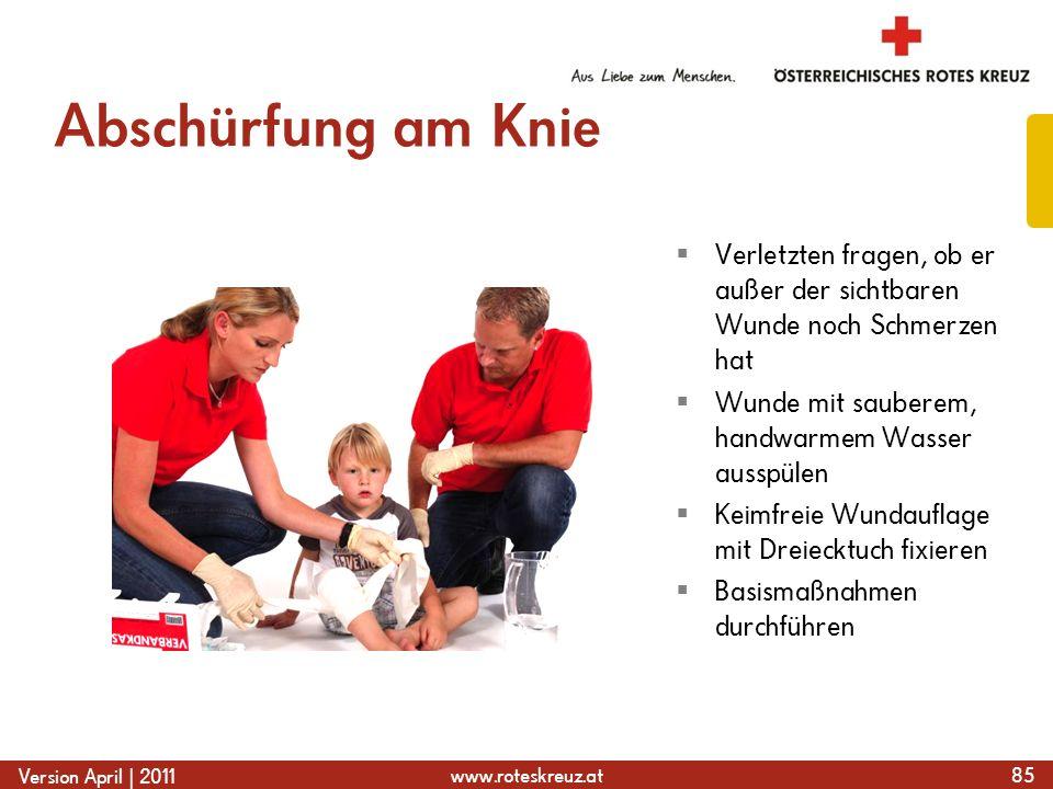 www.roteskreuz.at Version April | 2011 Abschürfung am Knie 85  Verletzten fragen, ob er außer der sichtbaren Wunde noch Schmerzen hat  Wunde mit sau