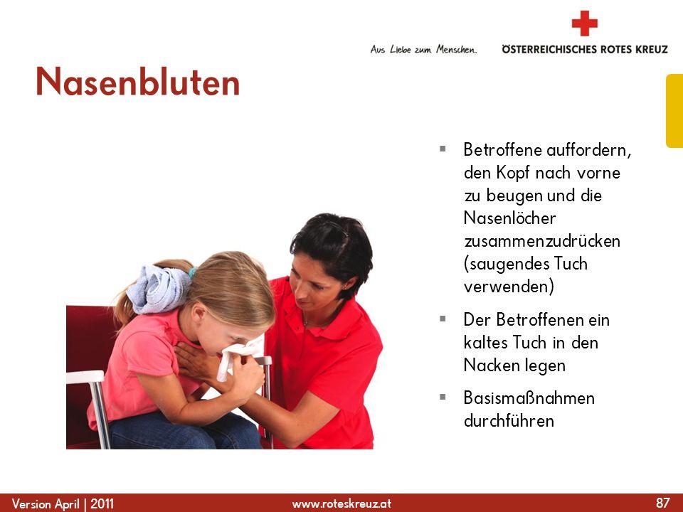 www.roteskreuz.at Version April | 2011 Nasenbluten 87  Betroffene auffordern, den Kopf nach vorne zu beugen und die Nasenlöcher zusammenzudrücken (sa