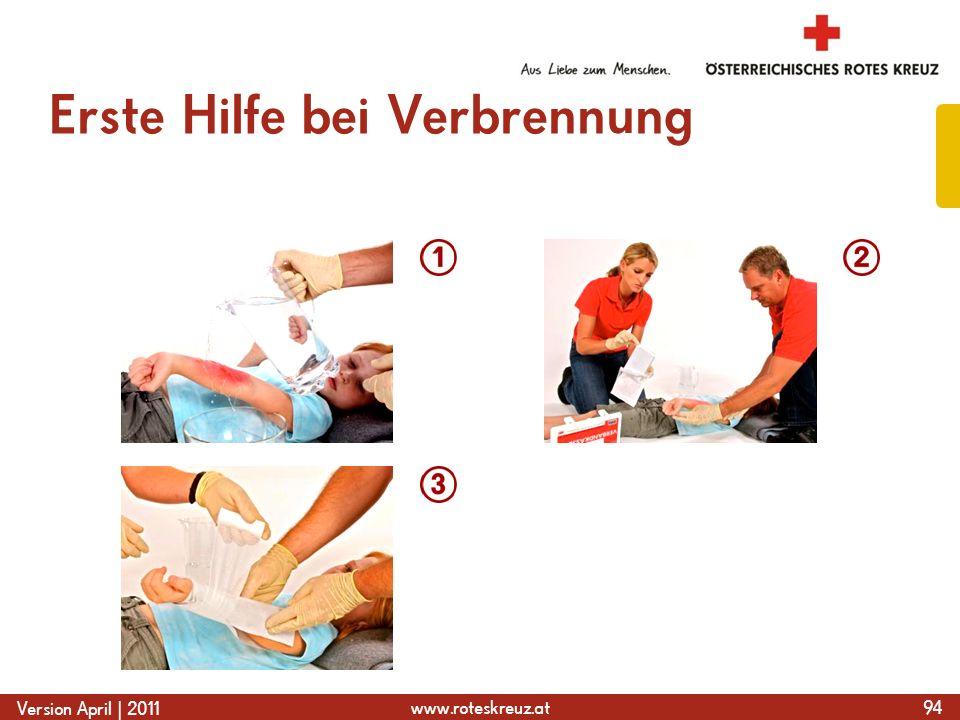 www.roteskreuz.at Version April | 2011 Erste Hilfe bei Verbrennung 94