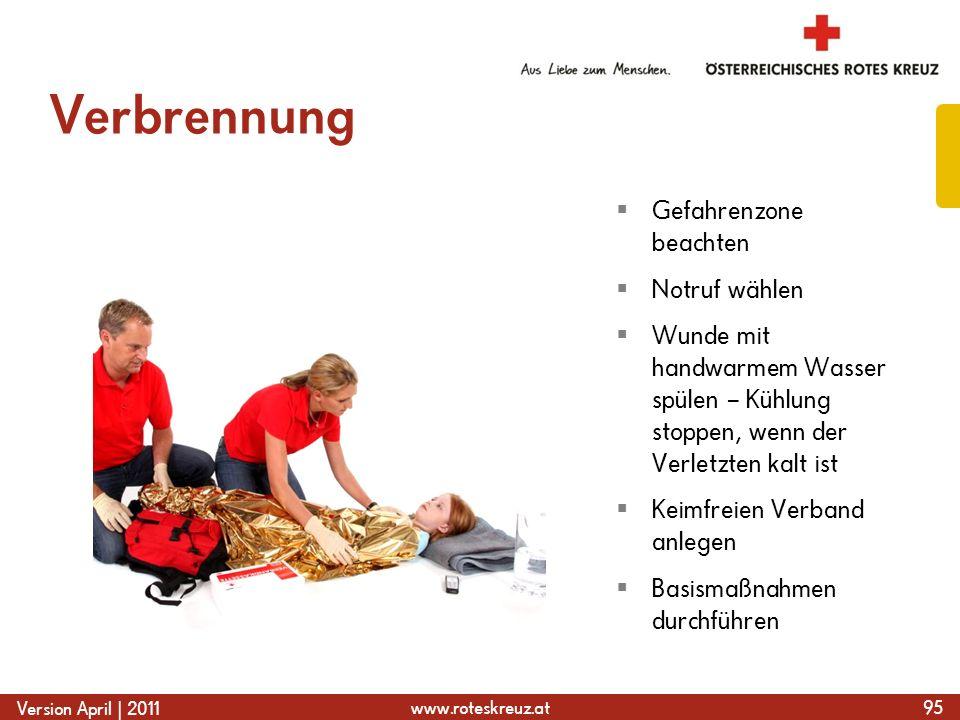 www.roteskreuz.at Version April | 2011 Verbrennung 95  Gefahrenzone beachten  Notruf wählen  Wunde mit handwarmem Wasser spülen – Kühlung stoppen,