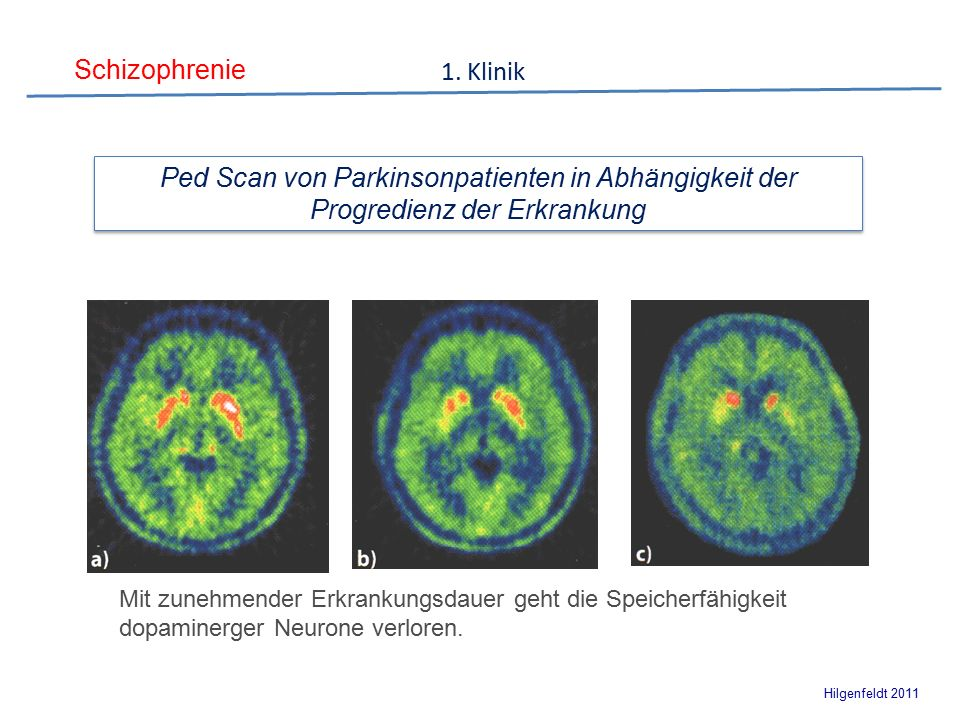 Schizophrenie Hilgenfeldt 2011 1.