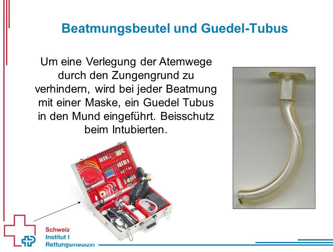 Beatmungsbeutel und Guedel-Tubus Um eine Verlegung der Atemwege durch den Zungengrund zu verhindern, wird bei jeder Beatmung mit einer Maske, ein Guedel Tubus in den Mund eingeführt.
