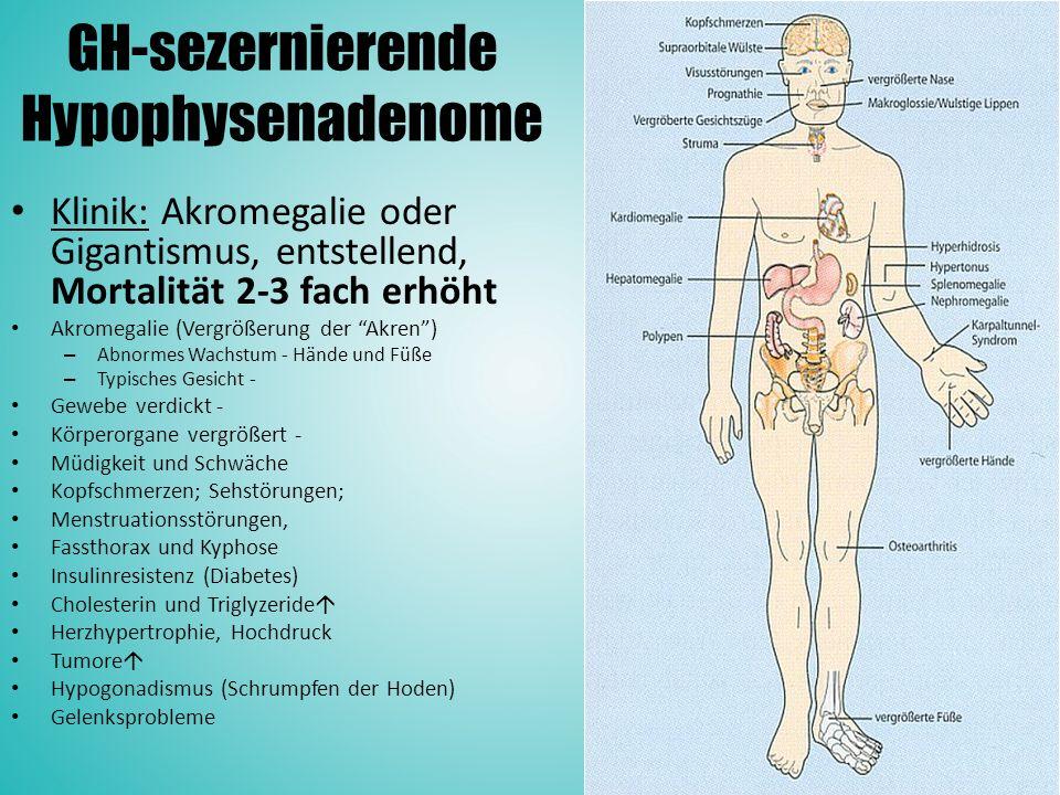 GH-sezernierende Hypophysenadenome Klinik: Akromegalie oder Gigantismus, entstellend, Mortalität 2-3 fach erhöht Akromegalie (Vergrößerung der Akren ) – Abnormes Wachstum - Hände und Füße – Typisches Gesicht - Gewebe verdickt - Körperorgane vergrößert - Müdigkeit und Schwäche Kopfschmerzen; Sehstörungen; Menstruationsstörungen, Fassthorax und Kyphose Insulinresistenz (Diabetes) Cholesterin und Triglyzeride  Herzhypertrophie, Hochdruck Tumore  Hypogonadismus (Schrumpfen der Hoden) Gelenksprobleme