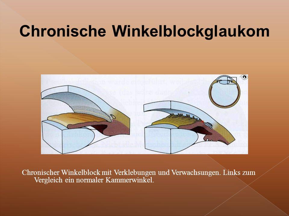 Chronischer Winkelblock mit Verklebungen und Verwachsungen.