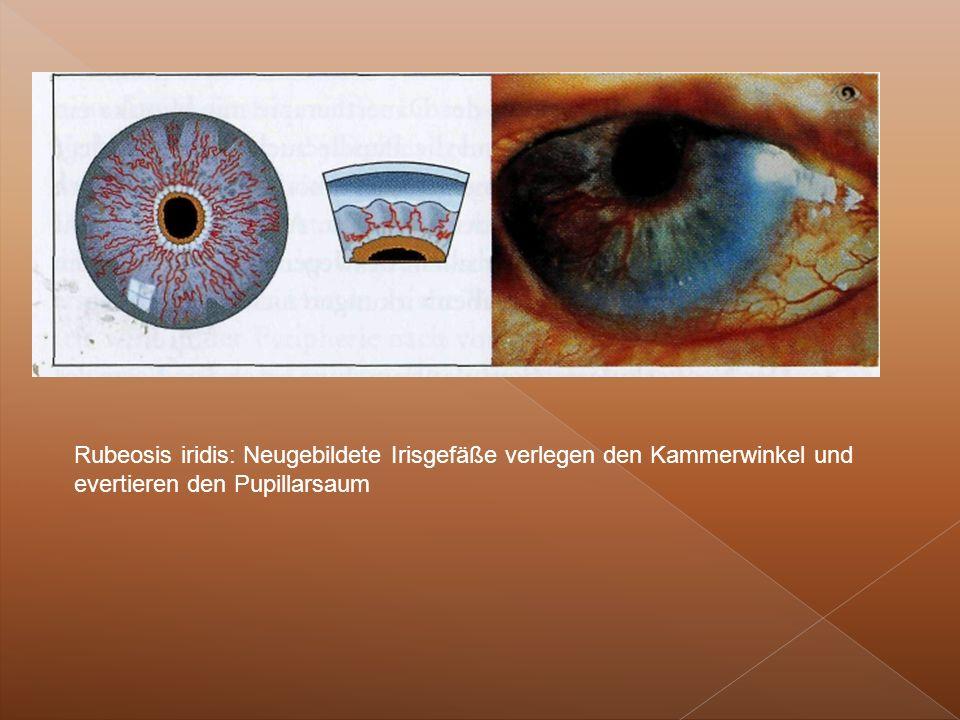 Rubeosis iridis: Neugebildete Irisgefäße verlegen den Kammerwinkel und evertieren den Pupillarsaum