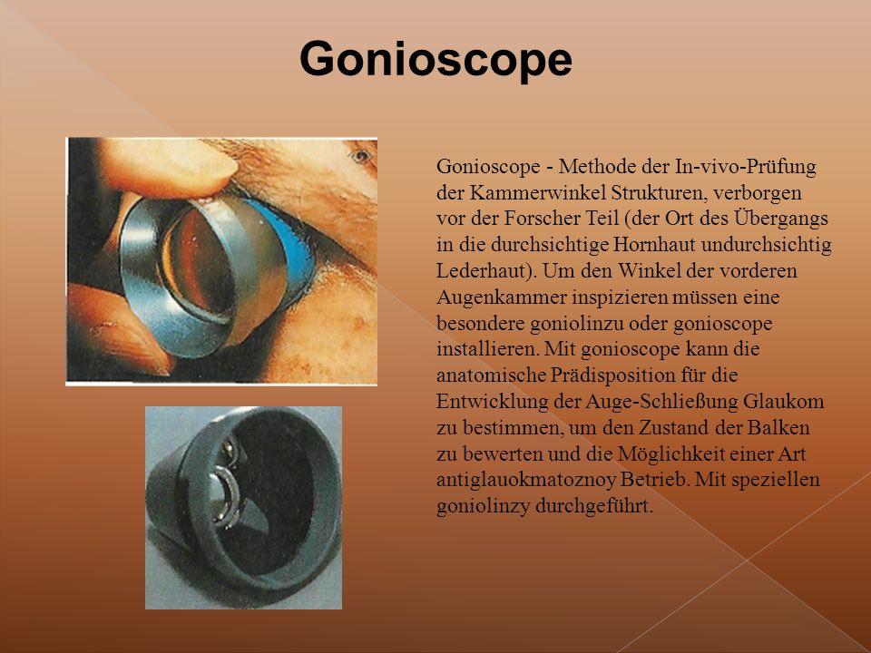 Gonioscope - Methode der In-vivo-Prüfung der Kammerwinkel Strukturen, verborgen vor der Forscher Teil (der Ort des Übergangs in die durchsichtige Hornhaut undurchsichtig Lederhaut).