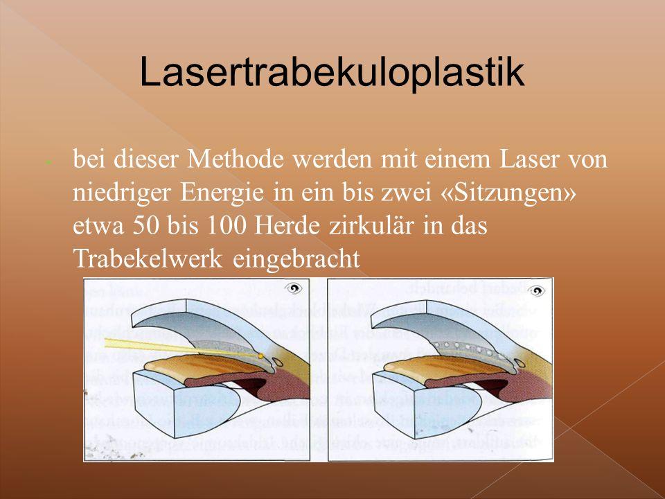 - bei dieser Methode werden mit einem Laser von niedriger Energie in ein bis zwei «Sitzungen» etwa 50 bis 100 Herde zirkulär in das Trabekelwerk eingebracht