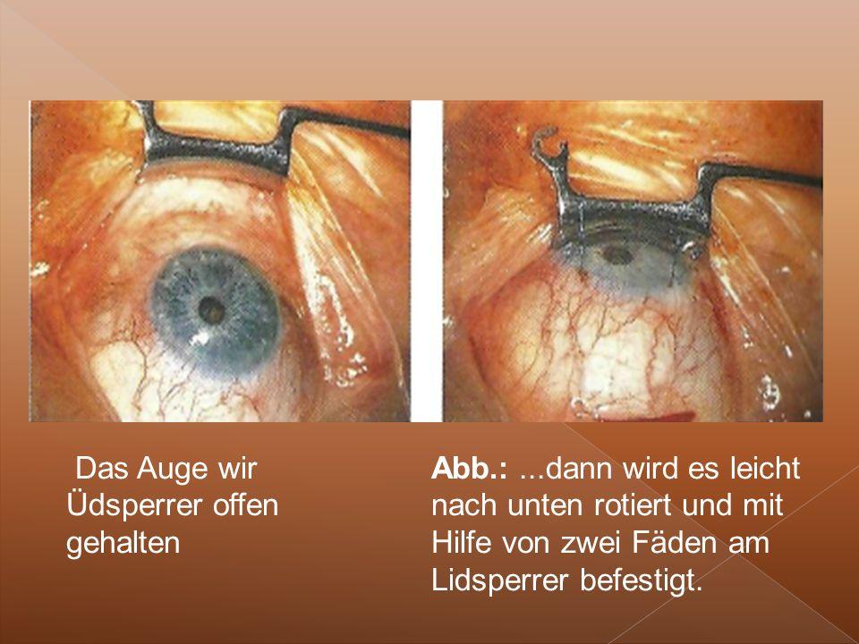 Das Auge wir Üdsperrer offen gehalten Abb.:...dann wird es leicht nach unten rotiert und mit Hilfe von zwei Fäden am Lidsperrer befestigt.