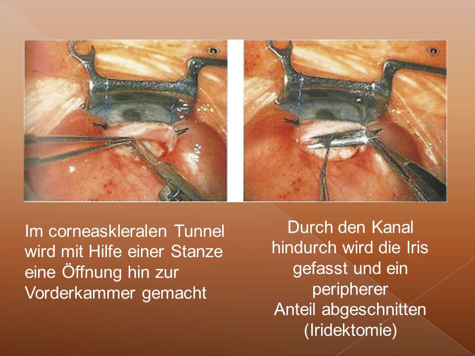 Im corneaskleralen Tunnel wird mit Hilfe einer Stanze eine Öffnung hin zur Vorderkammer gemacht Durch den Kanal hindurch wird die Iris gefasst und ein peripherer Anteil abgeschnitten (Iridektomie)
