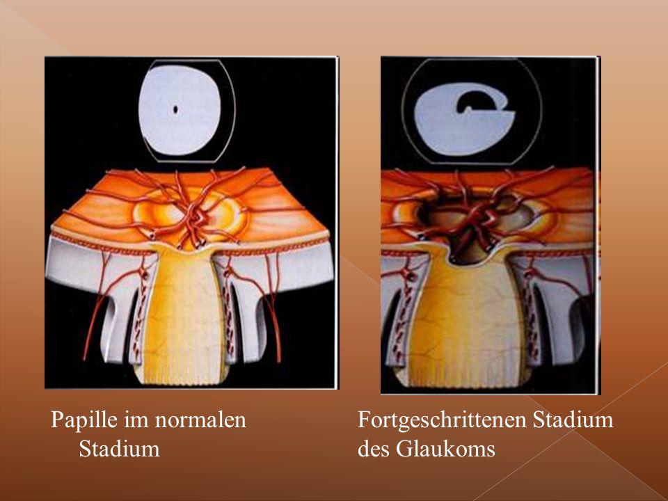 Papille im normalen Stadium Fortgeschrittenen Stadium des Glaukoms